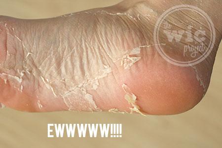 Baby Foot Peel Results