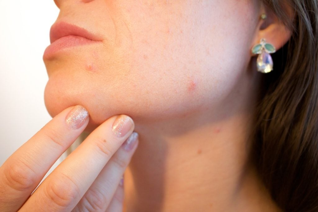 Acne: How to Get Rid of it Quickly